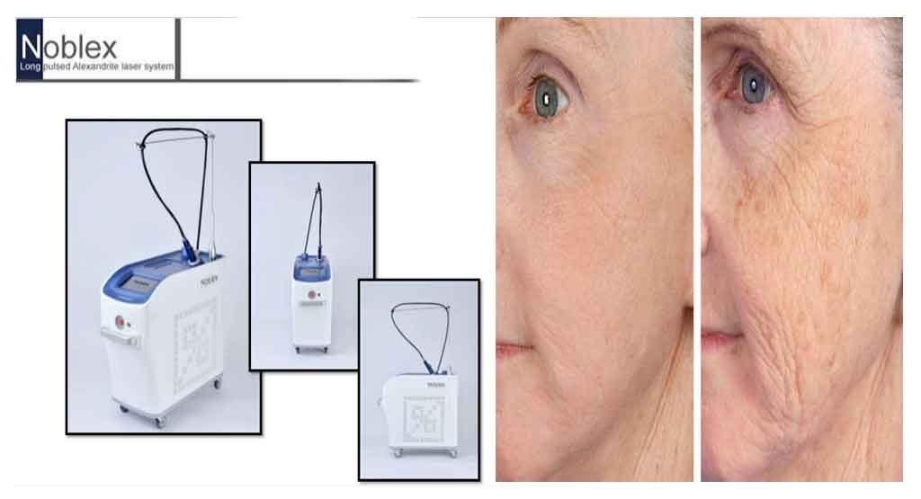 لیزر الکساندرایت Alexandrite Laser