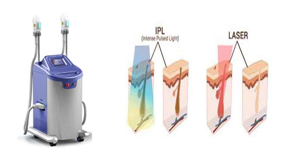 دستگاه لیزر آی پی ال IPL